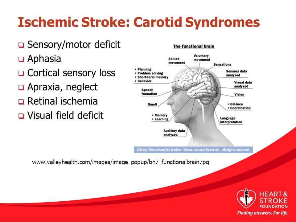 Ischemic Stroke: Carotid Syndromes  Sensory/motor deficit  Aphasia  Cortical sensory loss  Apraxia, neglect  Retinal ischemia  Visual field defi
