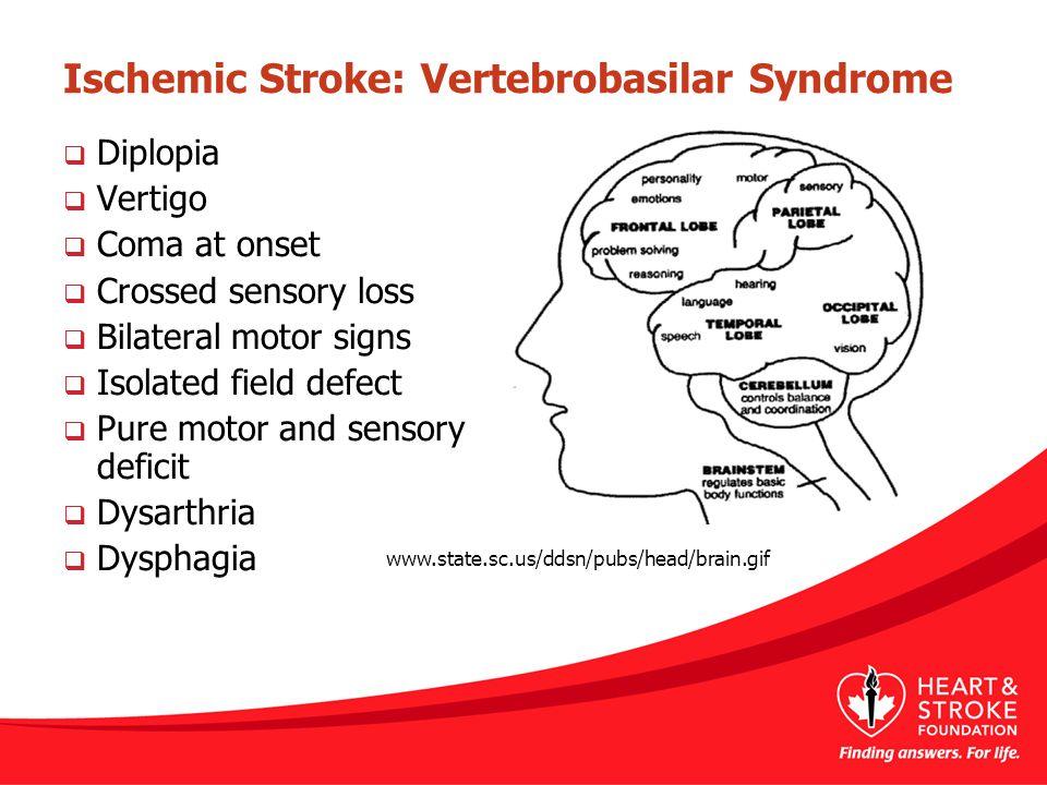 Ischemic Stroke: Vertebrobasilar Syndrome  Diplopia  Vertigo  Coma at onset  Crossed sensory loss  Bilateral motor signs  Isolated field defect