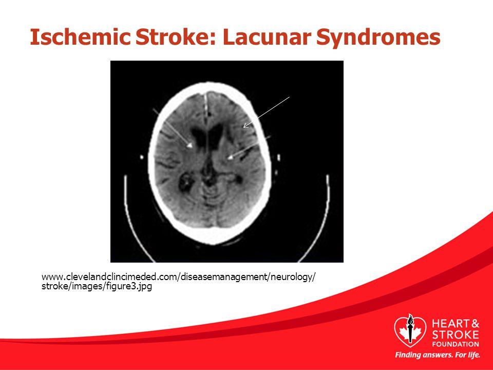 www.clevelandclincimeded.com/diseasemanagement/neurology/ stroke/images/figure3.jpg