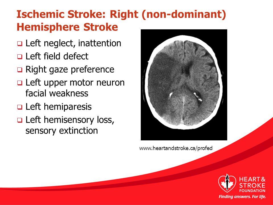 Ischemic Stroke: Right (non-dominant) Hemisphere Stroke  Left neglect, inattention  Left field defect  Right gaze preference  Left upper motor neu
