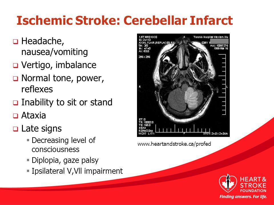 Ischemic Stroke: Cerebellar Infarct  Headache, nausea/vomiting  Vertigo, imbalance  Normal tone, power, reflexes  Inability to sit or stand  Atax