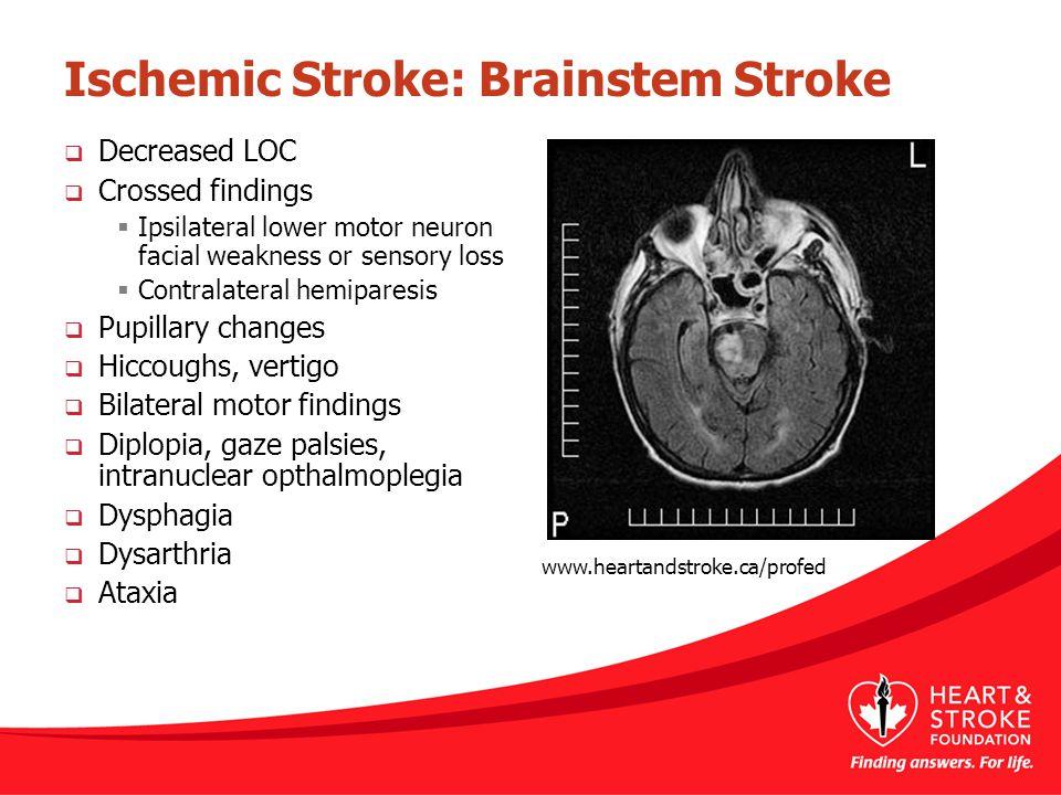 Ischemic Stroke: Brainstem Stroke  Decreased LOC  Crossed findings  Ipsilateral lower motor neuron facial weakness or sensory loss  Contralateral