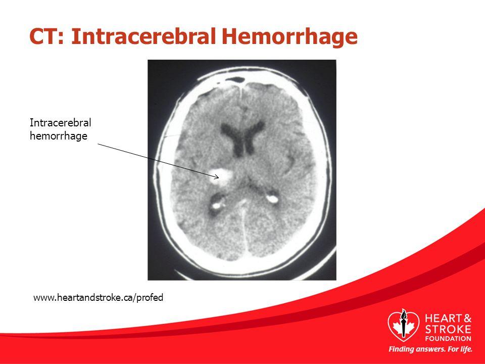 CT: Intracerebral Hemorrhage www.heartandstroke.ca/profed Intracerebral hemorrhage