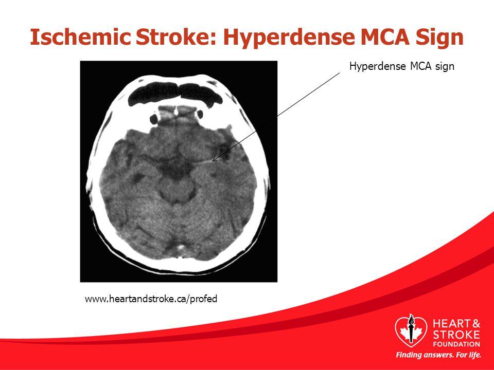 Ischemic Stroke: Hyperdense MCA Sign Hyperdense MCA sign www.heartandstroke.ca/profed