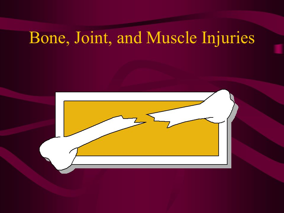 Fractures Open / compound –Skin is broken or damaged Closed / simple –Skin intact, no wound exists