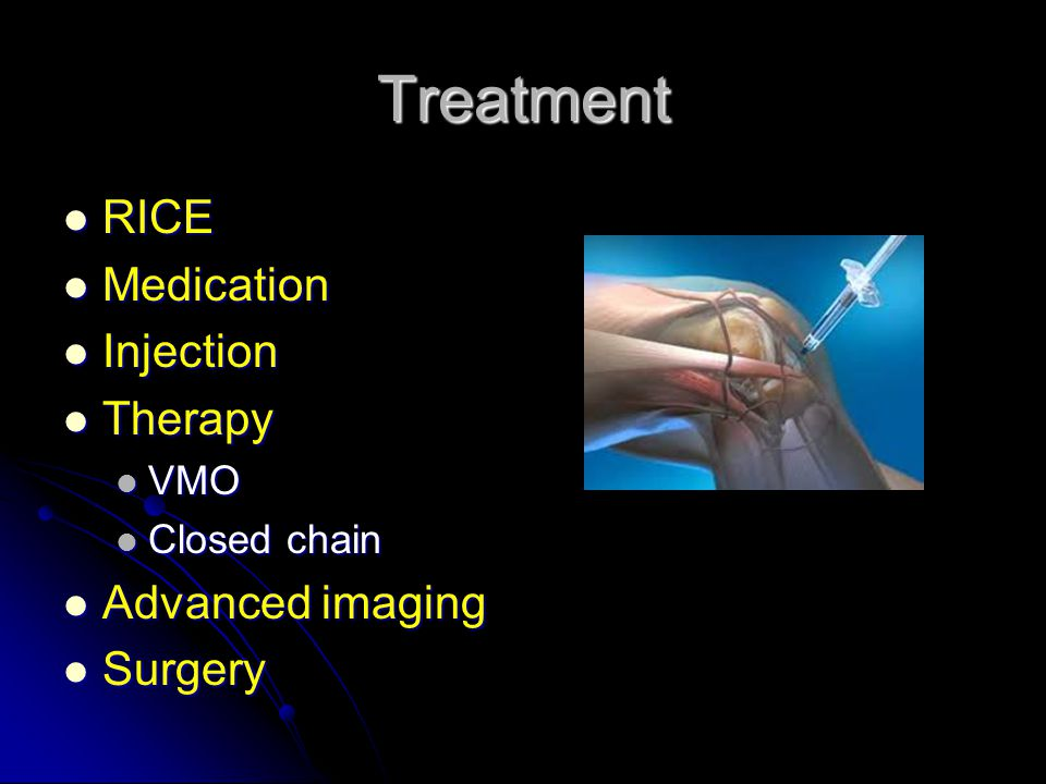 Treatment RICE RICE Medication Medication Injection Injection Therapy Therapy VMO VMO Closed chain Closed chain Advanced imaging Advanced imaging Surgery Surgery