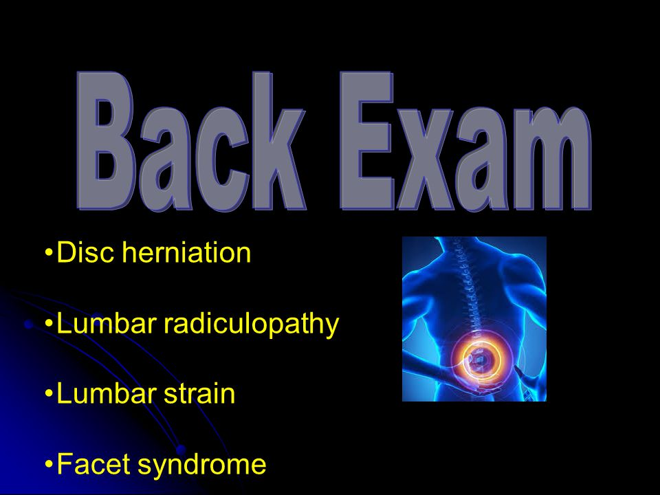 Disc herniation Lumbar radiculopathy Lumbar strain Facet syndrome