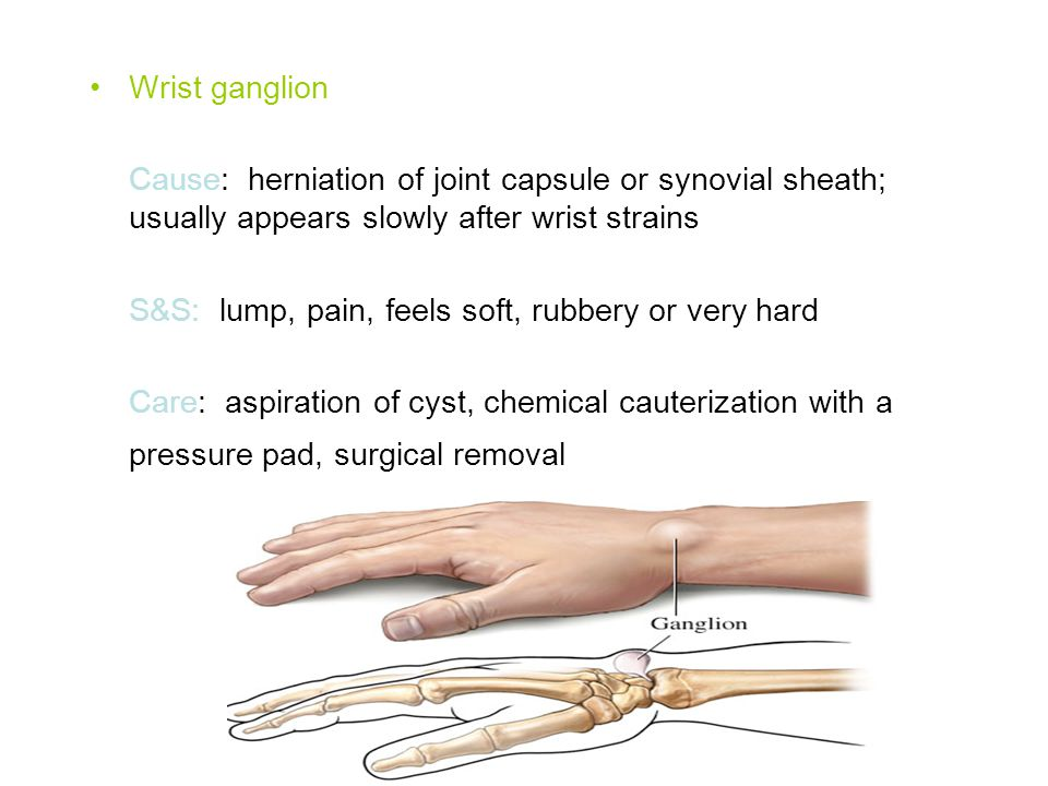 Wrist ganglion Cause: herniation of joint capsule or synovial sheath; usually appears slowly after wrist strains S&S: lump, pain, feels soft, rubbery