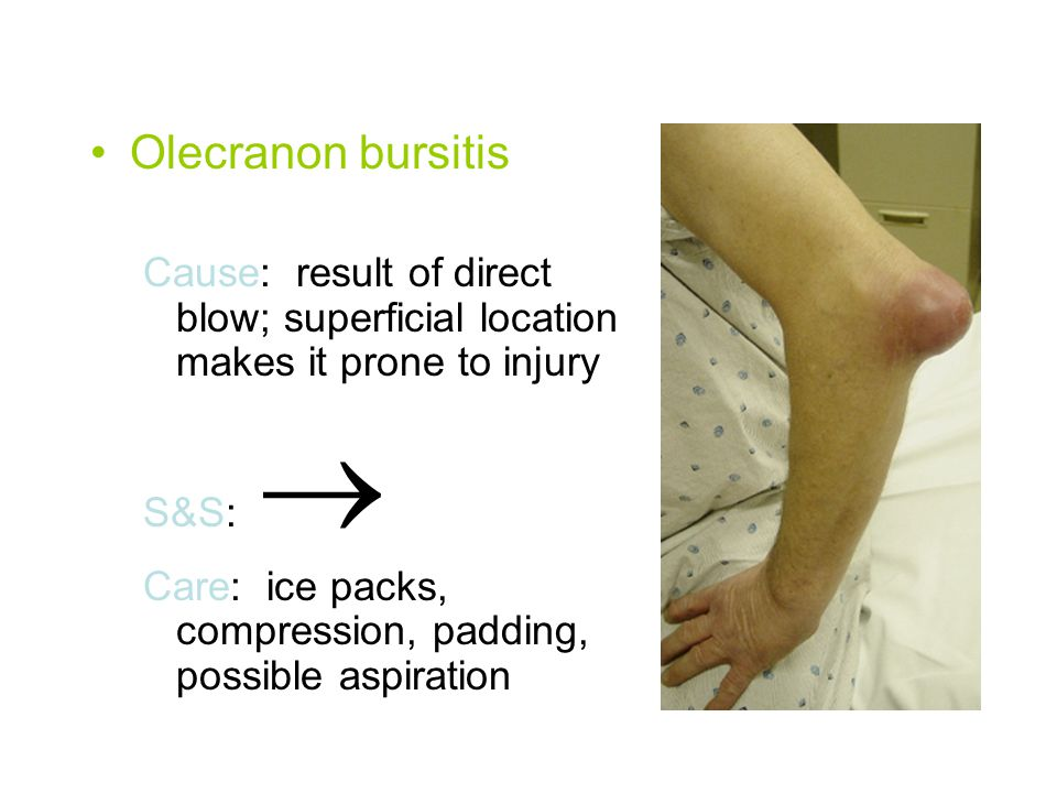 Elbow strains Cause: excessive resisted motion such as a fall on outstretched hand with elbow in extension that forces joint into hyperextension S&S: pain with active and resistive movement, point tenderness in muscle, tendon or muscle belly Care: RICE; rehab, modalities, x-ray if loss of motion