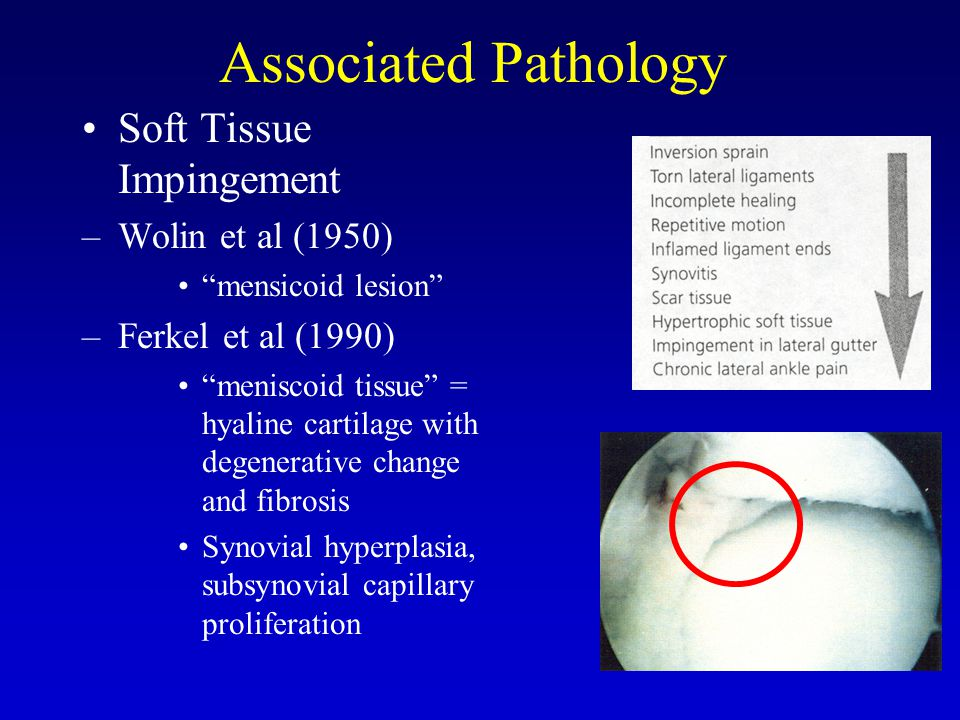 Associated Pathology Soft Tissue Impingement –Wolin et al (1950) mensicoid lesion –Ferkel et al (1990) meniscoid tissue = hyaline cartilage with degenerative change and fibrosis Synovial hyperplasia, subsynovial capillary proliferation