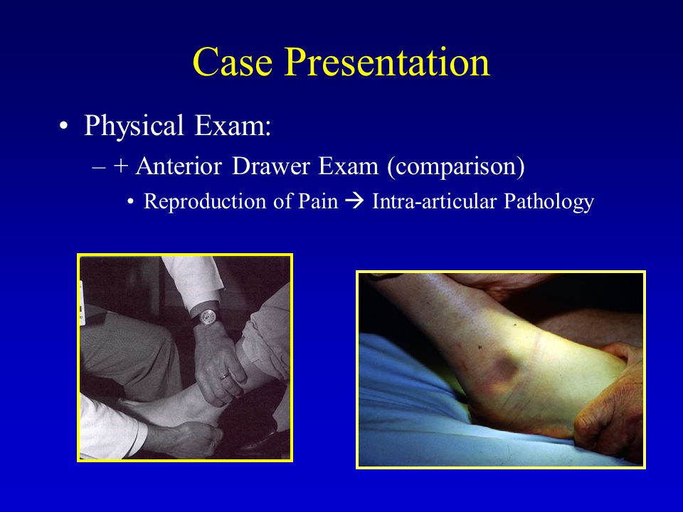 Case Presentation Physical Exam: –+ Talar Tilt (comparison)