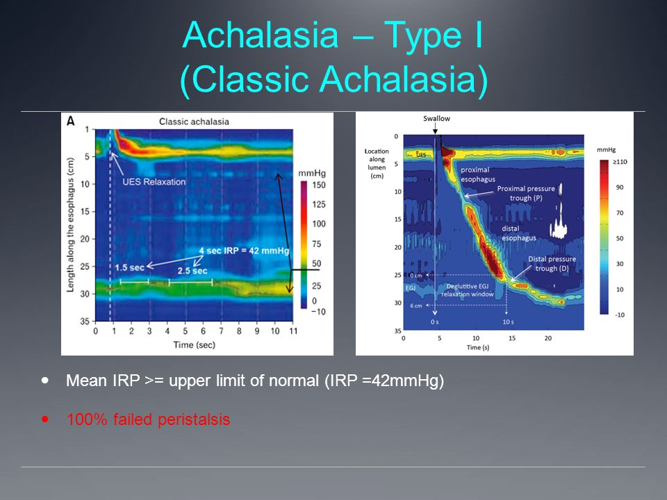 Achalasia – Type I (Classic Achalasia) Mean IRP >= upper limit of normal (IRP =42mmHg) 100% failed peristalsis