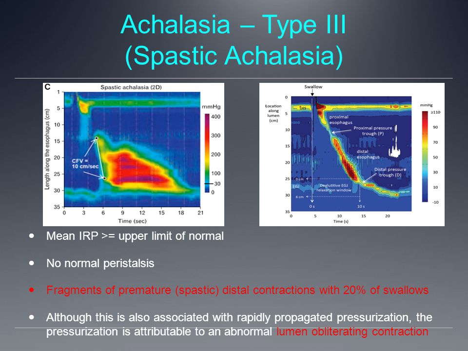 Achalasia – Type III (Spastic Achalasia) Mean IRP >= upper limit of normal No normal peristalsis Fragments of premature (spastic) distal contractions with 20% of swallows Although this is also associated with rapidly propagated pressurization, the pressurization is attributable to an abnormal lumen obliterating contraction