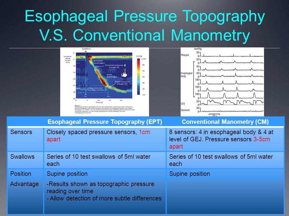 Esophageal Pressure Topography V.S. Conventional Manometry Esophageal Pressure Topography (EPT)Conventional Manometry (CM) SensorsClosely spaced press