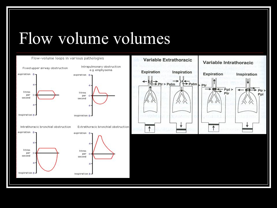 Flow volume volumes