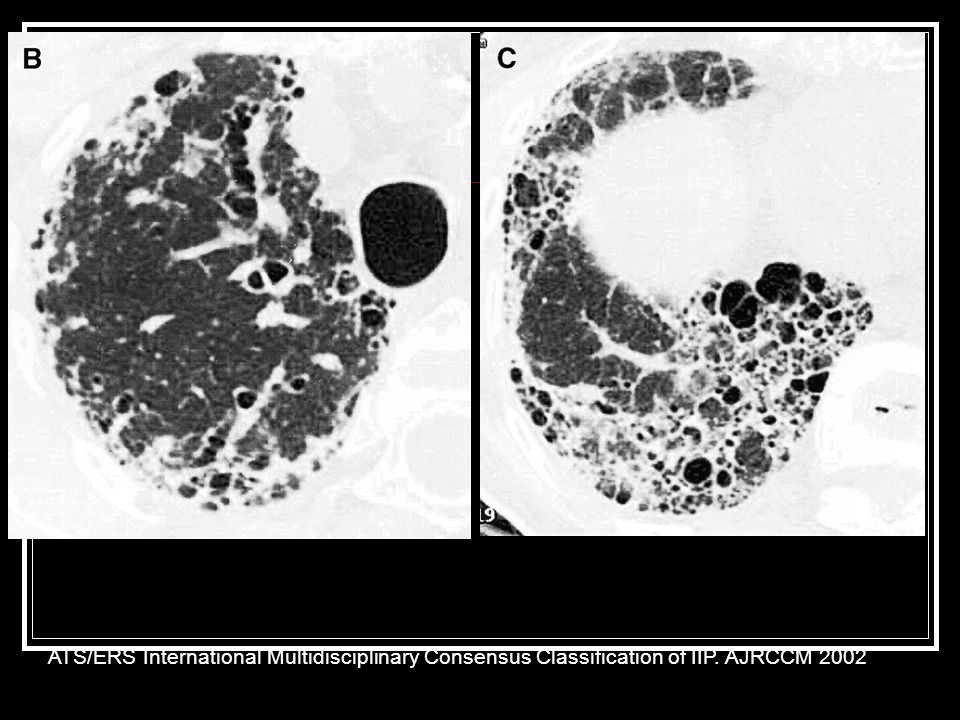 Example of disease progression over time ATS/ERS International Multidisciplinary Consensus Classification of IIP.
