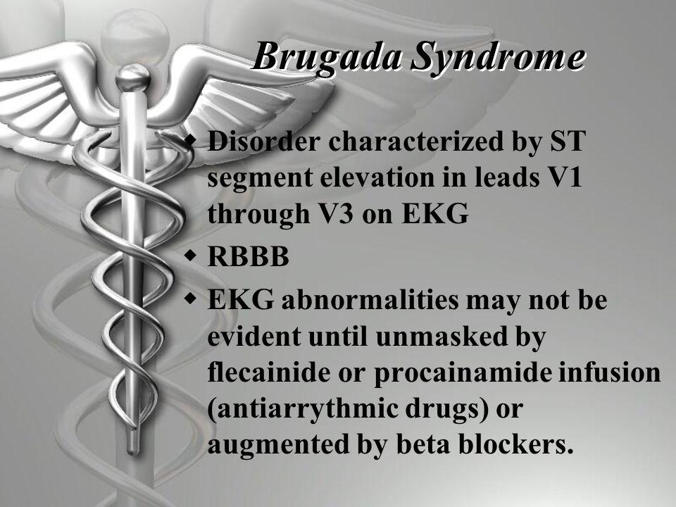ST segment elevation in V1-V3 with RBBB