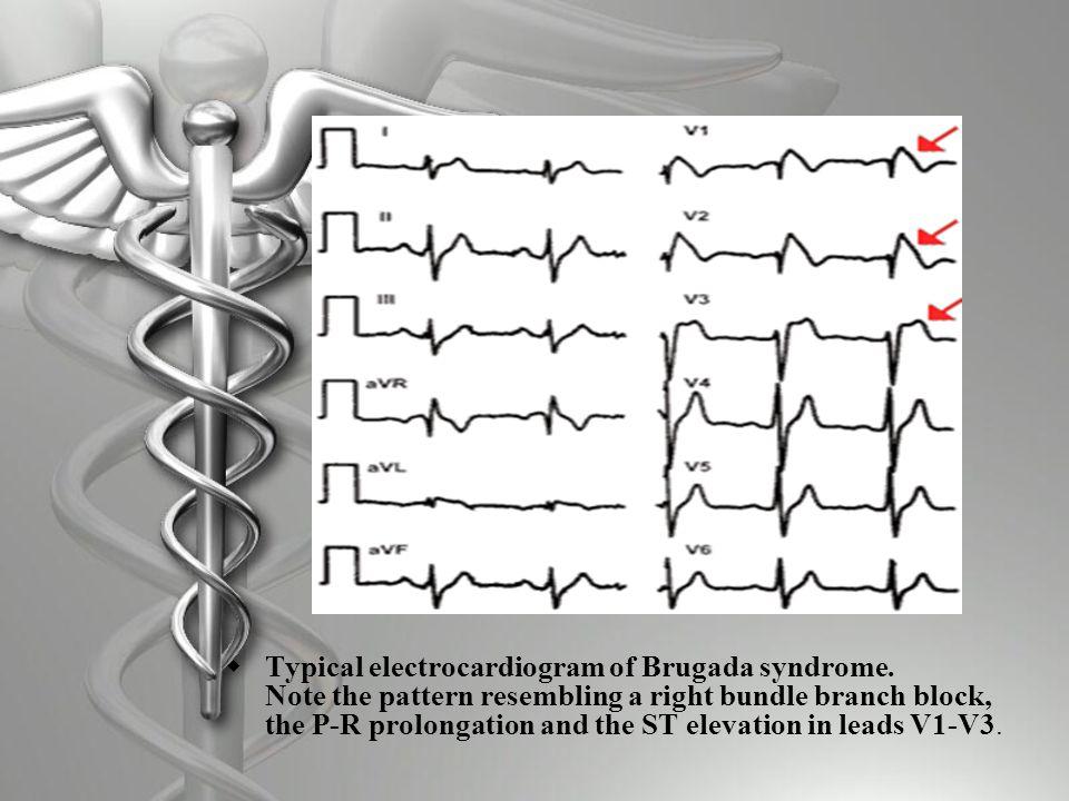 Brugada Syndrome  Structurally normal heart  Sudden death or syncope  Presentation characteristic of ventricular fibrillation or ventricular tachycardia  No prodromal symptoms