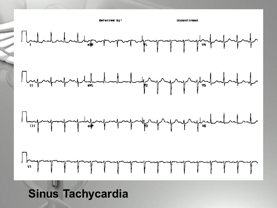 Brugada Syndrome  Disorder characterized by ST segment elevation in leads V1 through V3 on EKG  RBBB  EKG abnormalities may not be evident until unmasked by flecainide or procainamide infusion (antiarrythmic drugs) or augmented by beta blockers.