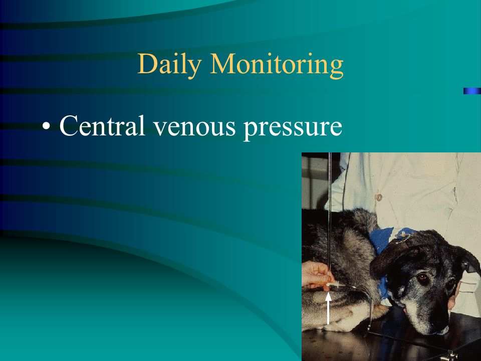Daily Monitoring Central venous pressure