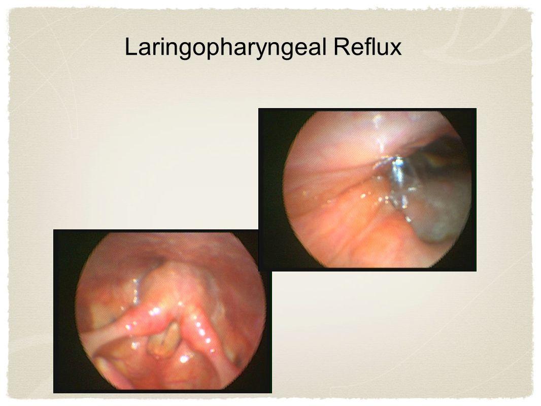 Laringopharyngeal Reflux