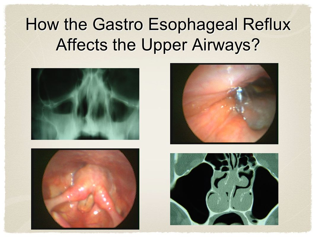 How the Gastro Esophageal Reflux Affects the Upper Airways