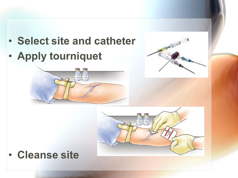 Select site and catheter Apply tourniquet Cleanse site