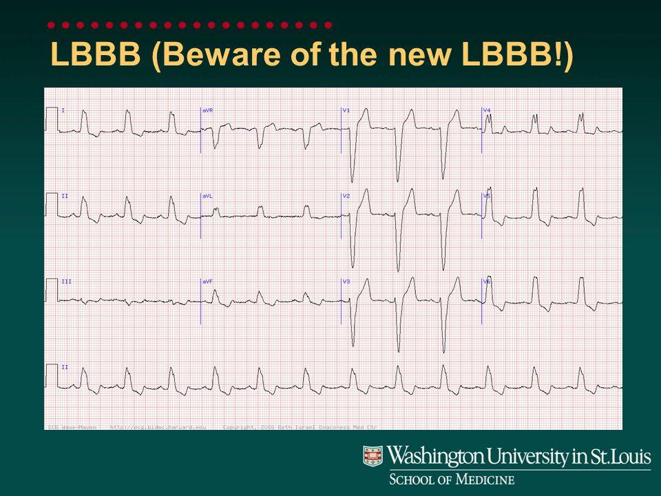 LBBB (Beware of the new LBBB!)