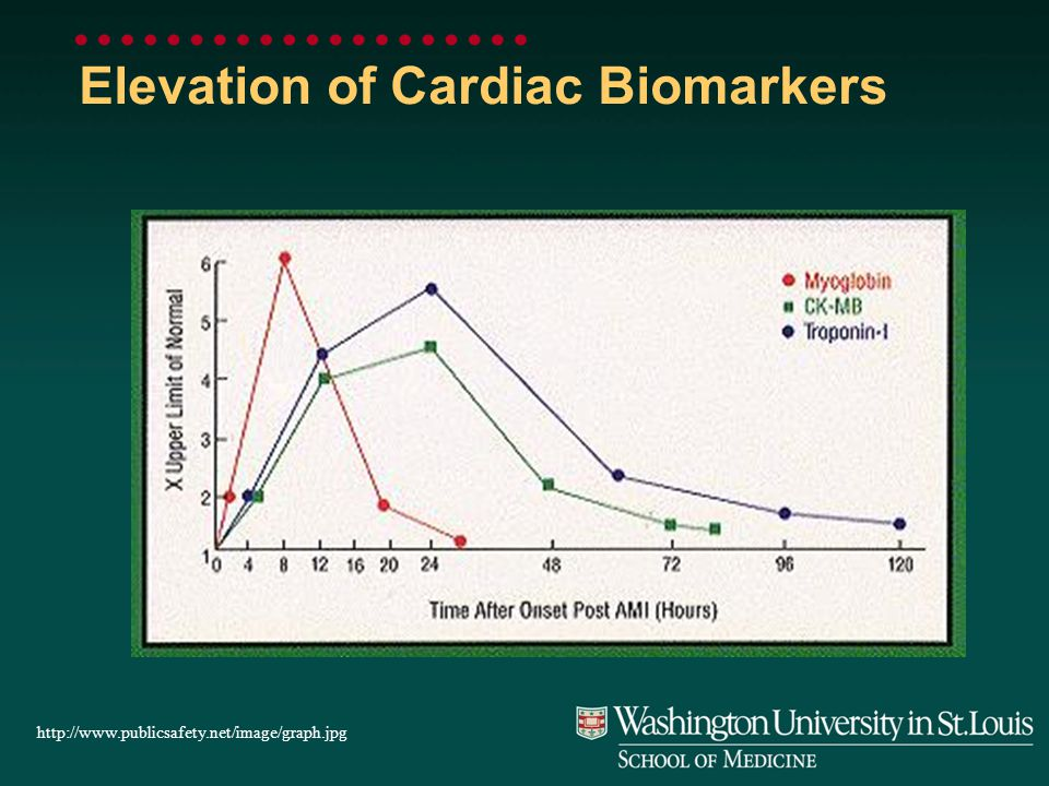 Elevation of Cardiac Biomarkers http://www.publicsafety.net/image/graph.jpg