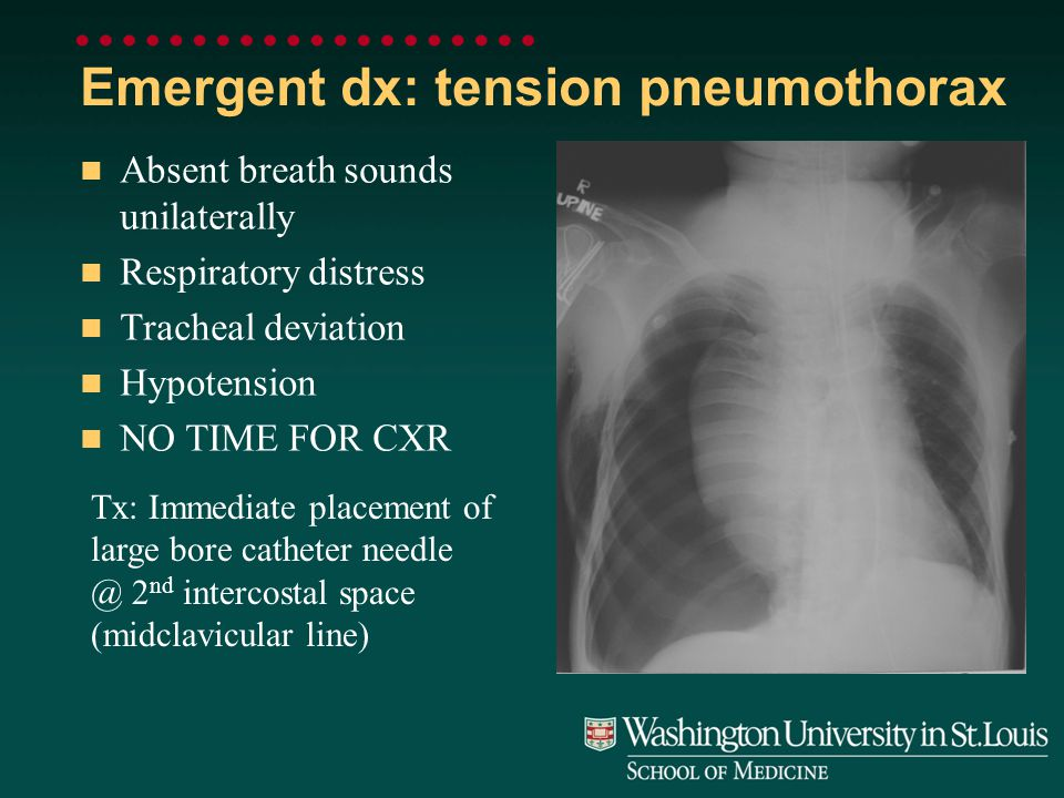 Emergent dx: tension pneumothorax Absent breath sounds unilaterally Respiratory distress Tracheal deviation Hypotension NO TIME FOR CXR Tx: Immediate placement of large bore catheter needle @ 2 nd intercostal space (midclavicular line)