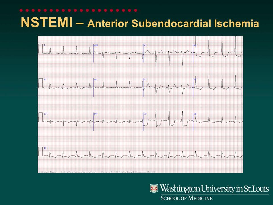 NSTEMI – Anterior Subendocardial Ischemia