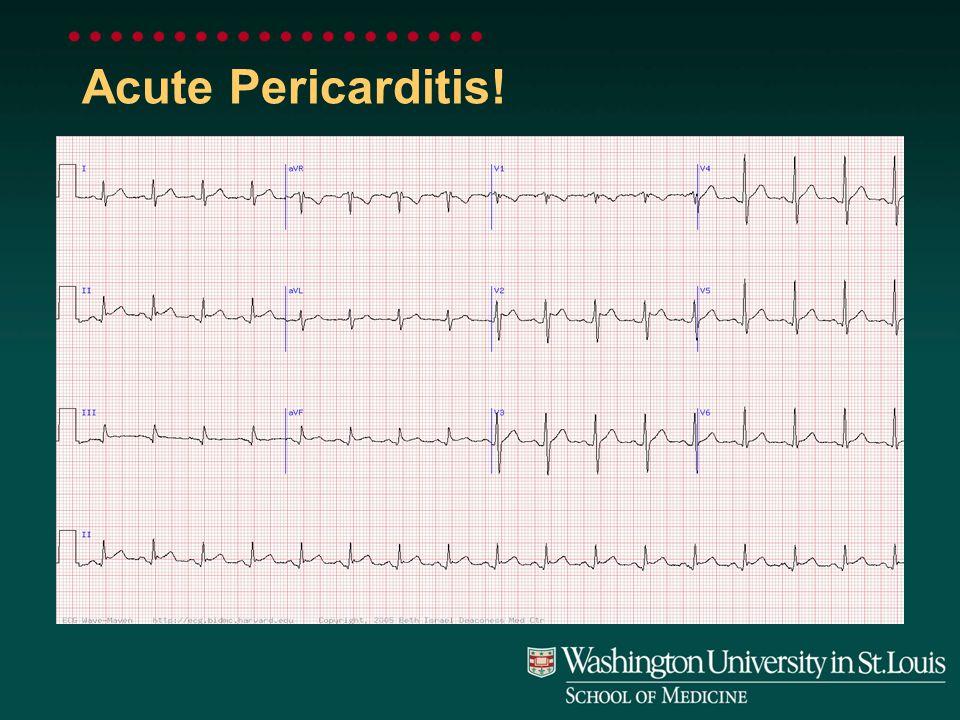 Acute Pericarditis!