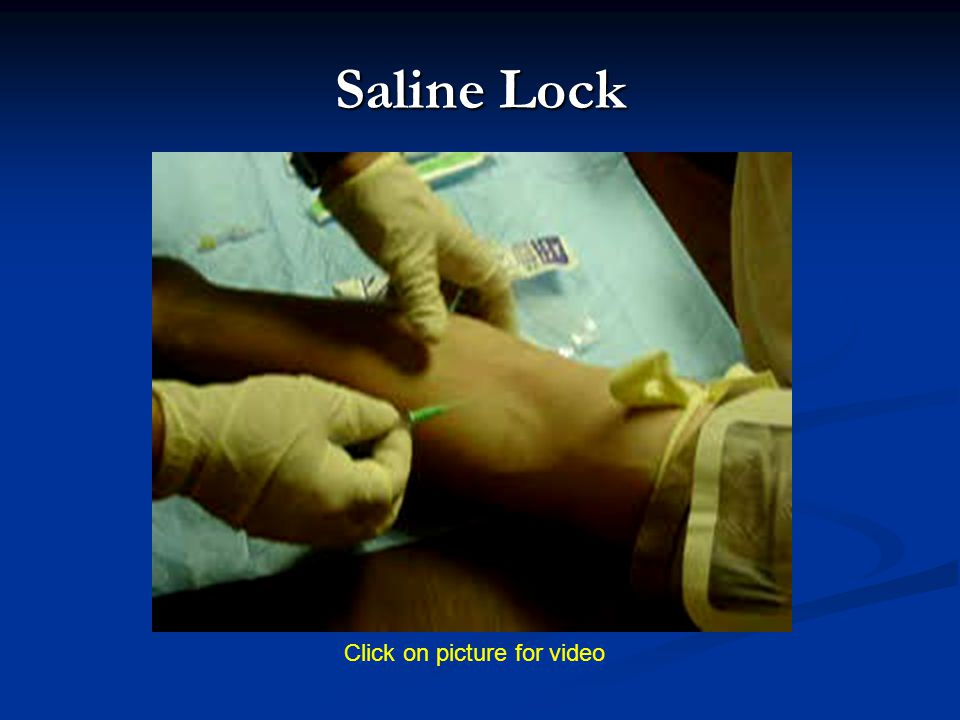 Saline Lock Click on picture for video
