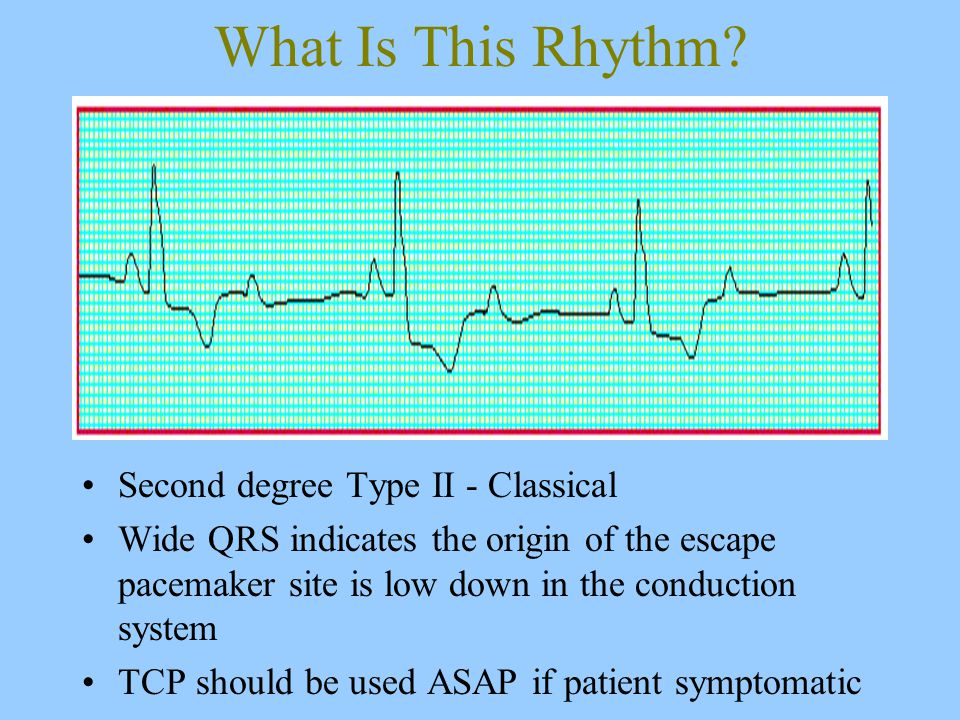 What Is This Rhythm.