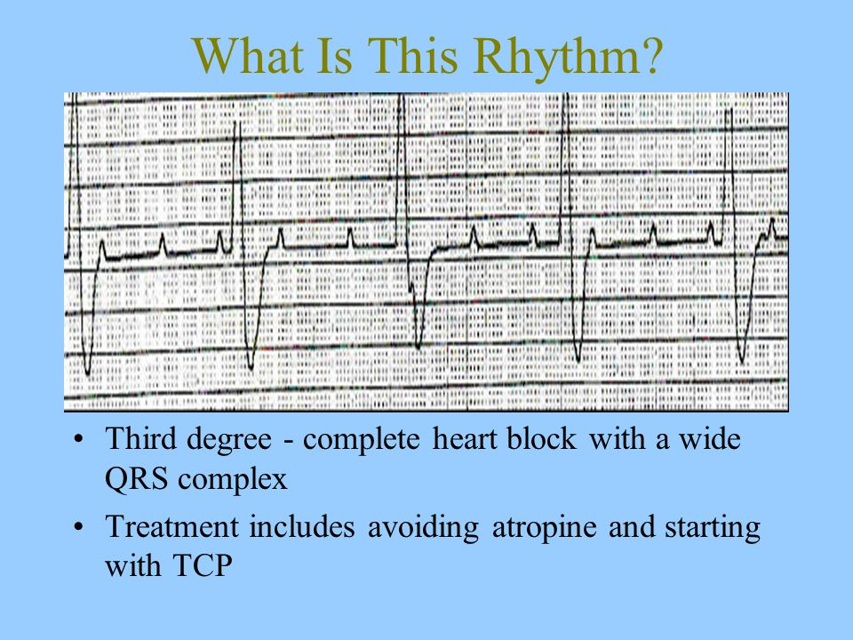 Third degree - complete heart block with a wide QRS complex Treatment includes avoiding atropine and starting with TCP What Is This Rhythm