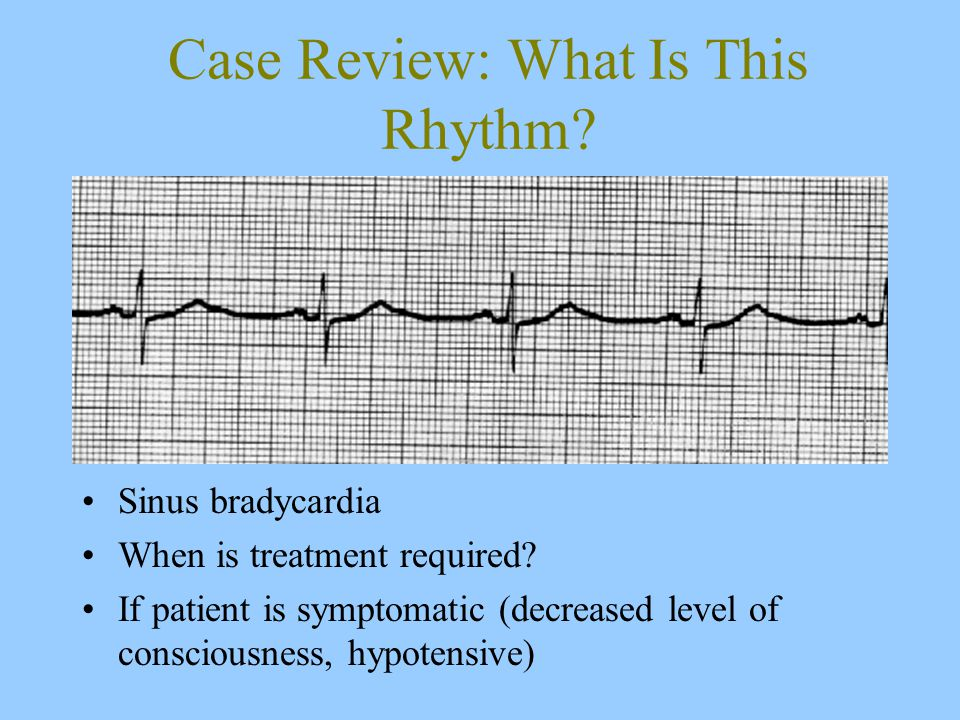 Case Review: What Is This Rhythm. Sinus bradycardia When is treatment required.