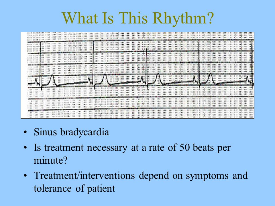 What Is This Rhythm. Sinus bradycardia Is treatment necessary at a rate of 50 beats per minute.