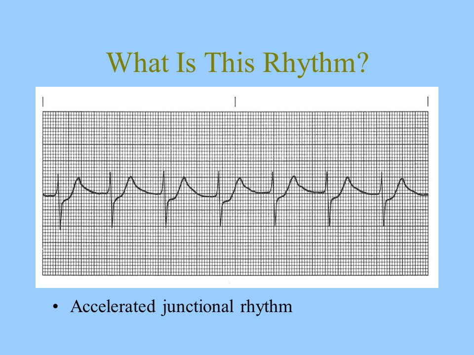What Is This Rhythm Accelerated junctional rhythm