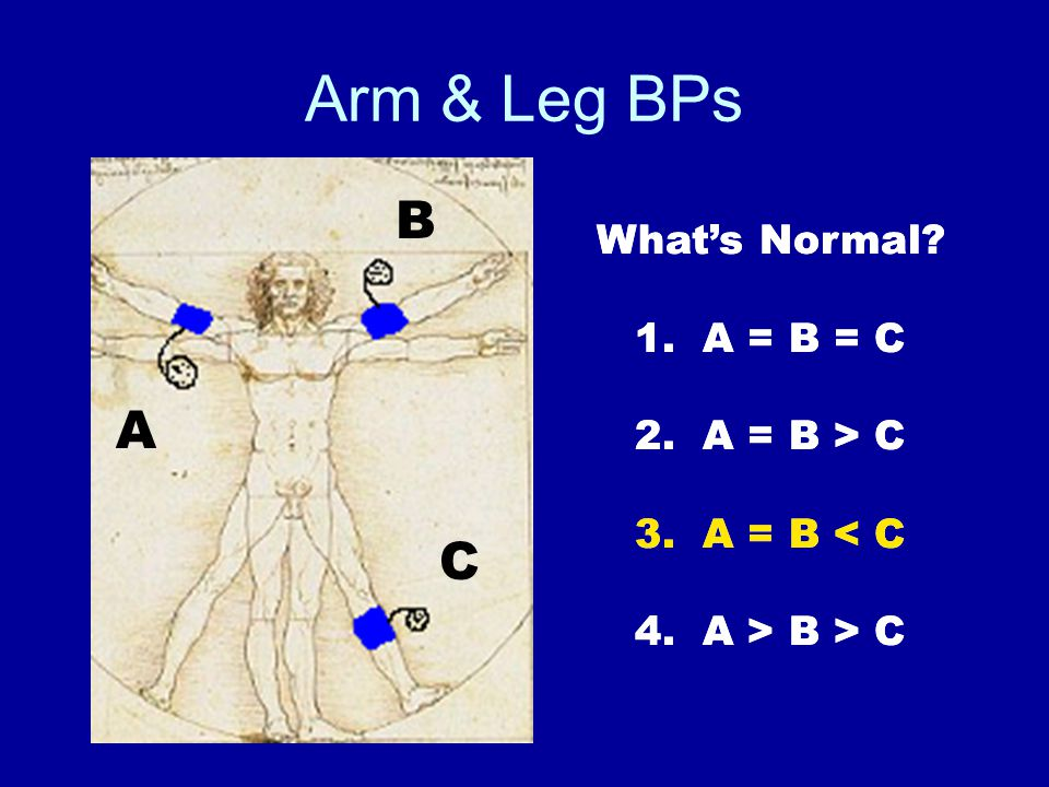Arm & Leg BPs A B C What's Normal. 1. A = B = C 2.