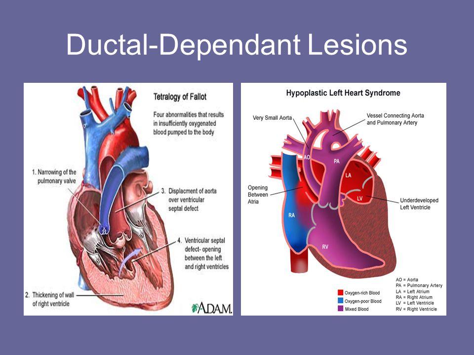 Ductal-Dependant Lesions