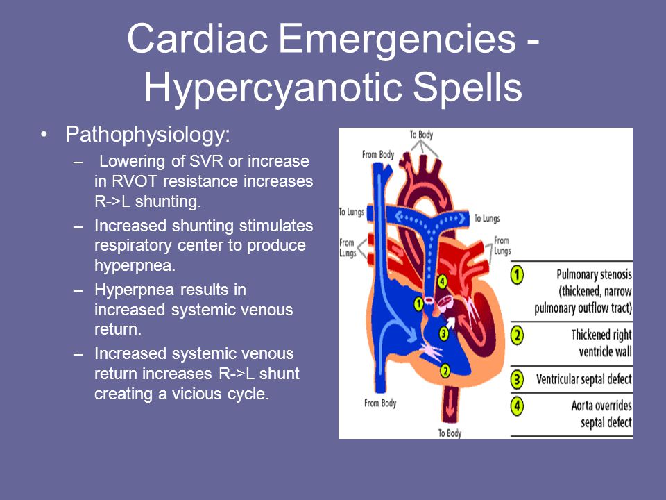 Cardiac Emergencies - Hypercyanotic Spells Pathophysiology: – Lowering of SVR or increase in RVOT resistance increases R->L shunting.