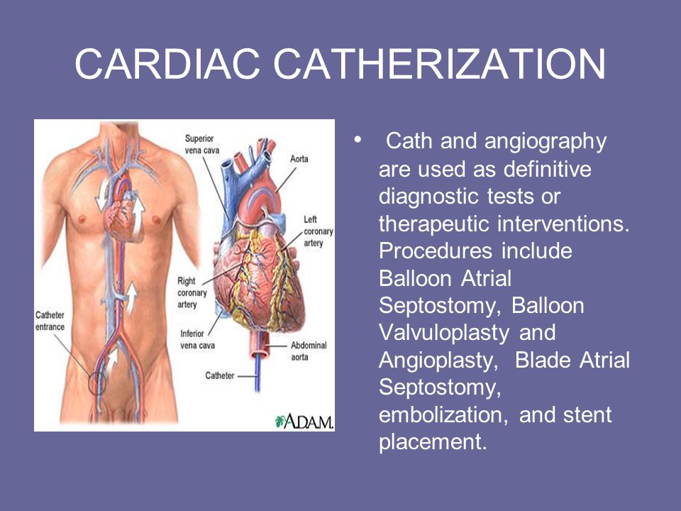 CARDIAC CATHERIZATION Cath and angiography are used as definitive diagnostic tests or therapeutic interventions.