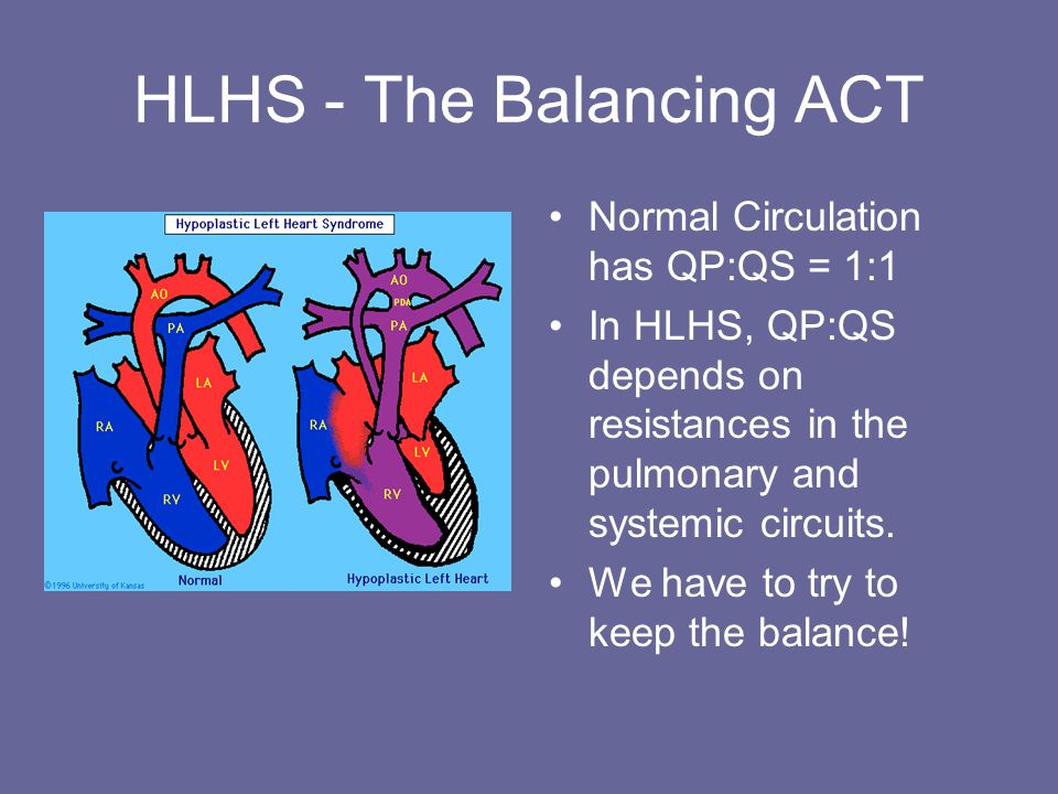 HLHS - The Balancing ACT Normal Circulation has QP:QS = 1:1 In HLHS, QP:QS depends on resistances in the pulmonary and systemic circuits.