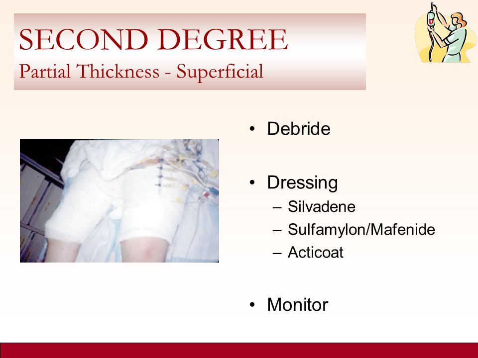SECOND DEGREE Partial Thickness - Superficial Debride Dressing –Silvadene –Sulfamylon/Mafenide –Acticoat Monitor