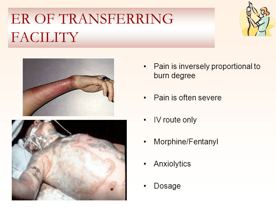 ER OF TRANSFERRING FACILITY Pain is inversely proportional to burn degree Pain is often severe IV route only Morphine/Fentanyl Anxiolytics Dosage