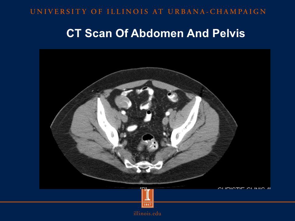 CT Scan Of Abdomen And Pelvis