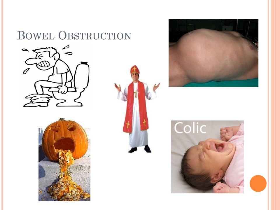 B OWEL O BSTRUCTION