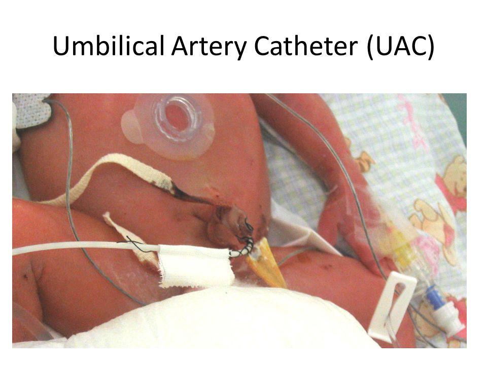 Umbilical Artery Catheter (UAC)
