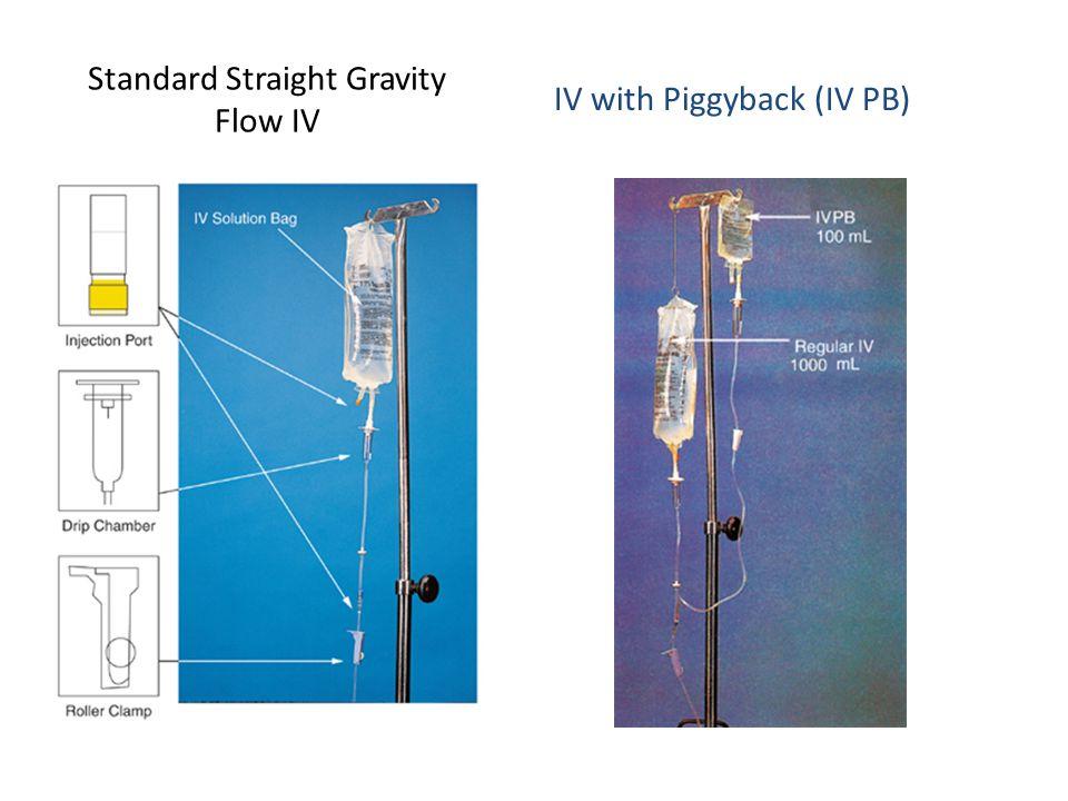 Standard Straight Gravity Flow IV IV with Piggyback (IV PB)