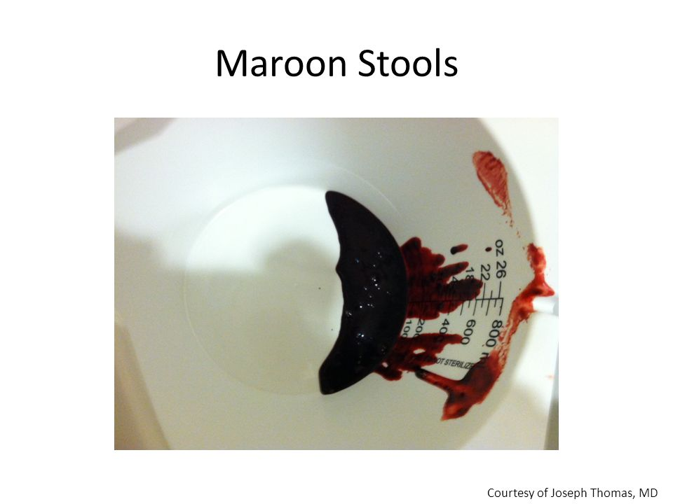 Maroon Stools Courtesy of Joseph Thomas, MD
